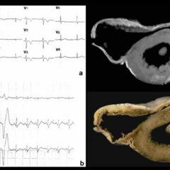 12-lead ECG Arrhythmogenic right ventricular cardiomyopathy (ARVC)