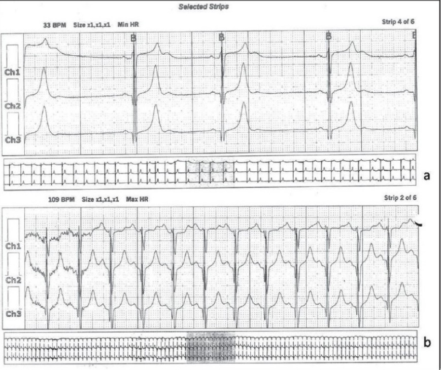24-Hour Holter