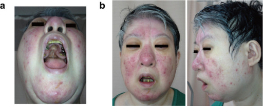 48-year-old woman with the 22q11.2 deletion