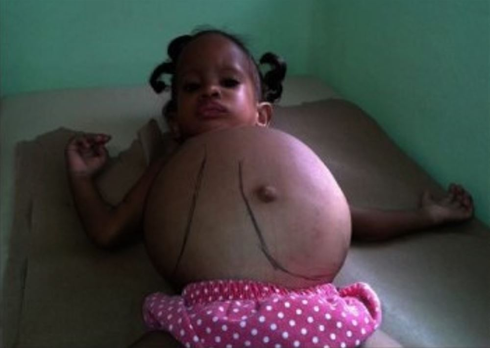 A child with massive hepatosplenomegaly due to Gaucher disease