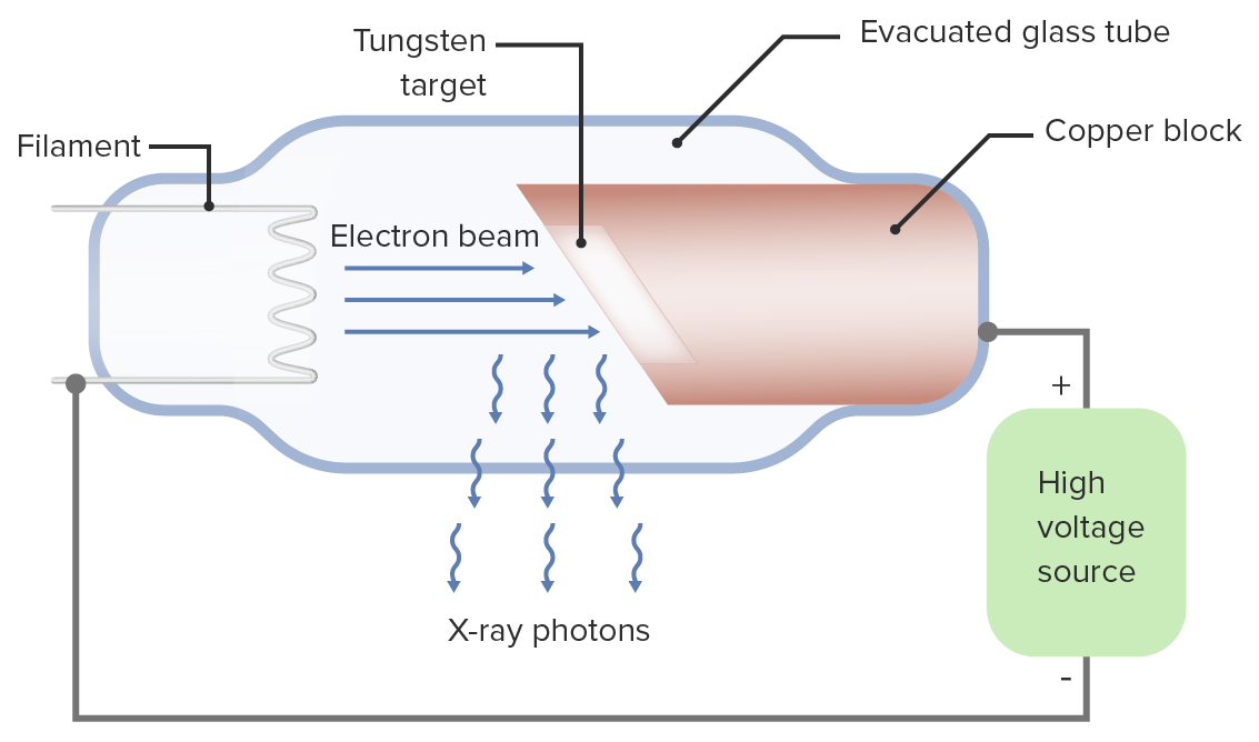 A diagram of an X-ray tube