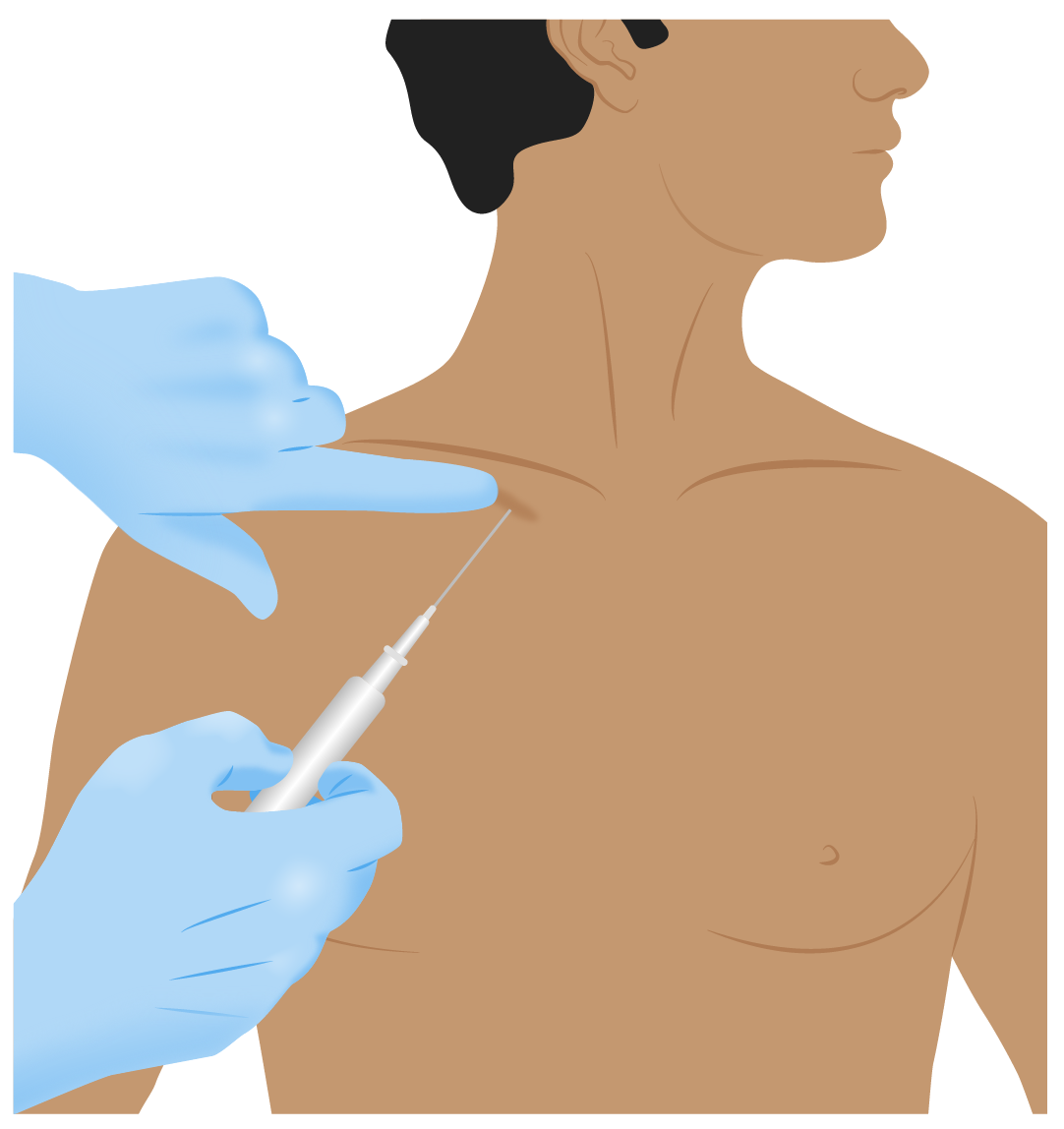 A diagram of the puncture site for a subclavian central venous catheter