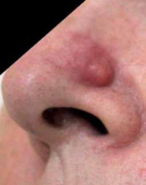 A large skin nodule
