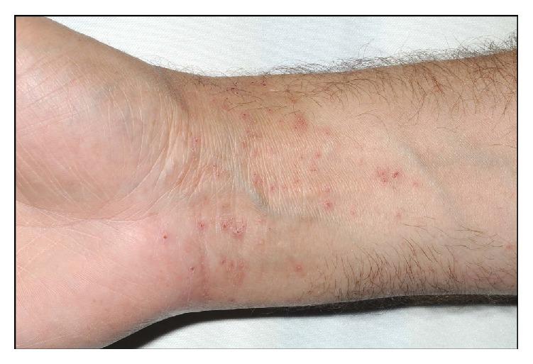 A pruritic, vesicular eruption due to contact dermatitis