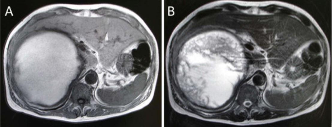 Abdominal MRI T1 vs T2 sequence