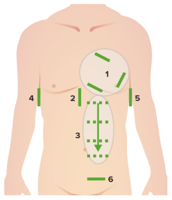 Abdominal and Cardiac Evaluation with Sonography in Shock protocol-01