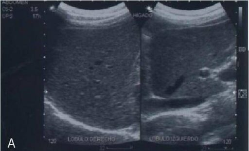 Abdominal ultrasonography of a patient with non-alcoholic fatty liver disease