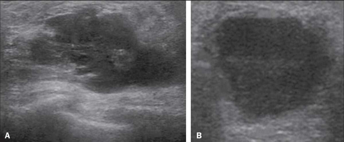 Abscess on ultrasound in diagnosis of mastitis