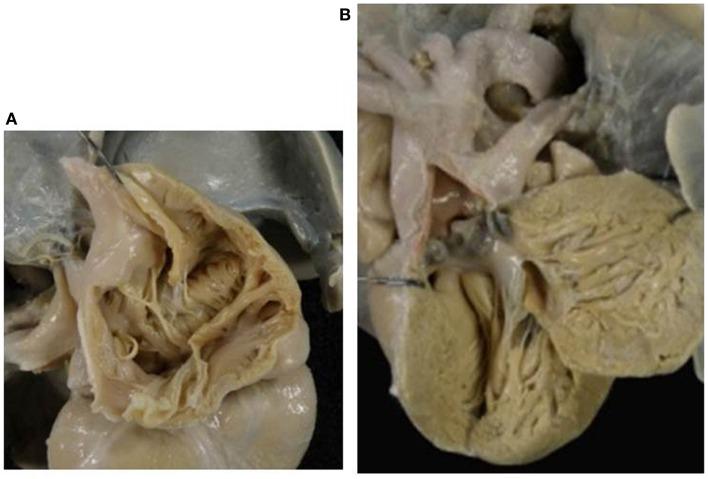 Absent left AV valve (tricuspid atresia) with truncus arteriosus
