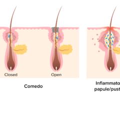 Acne vulgaris pathogenesis illustrated