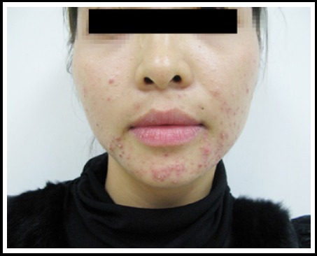 Acne vulgaris with typical lesions