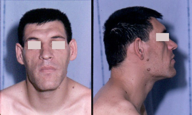 Acromegaly facial features