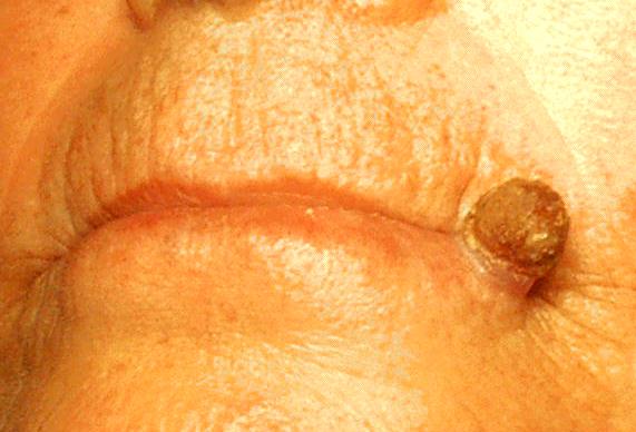 Actinic keratosis on the lip