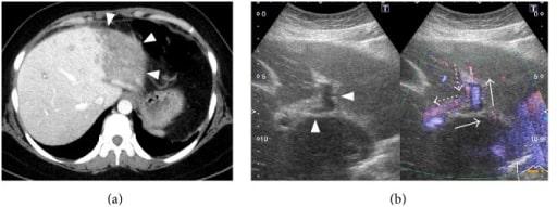 Acute Budd-Chiari Syndrome CT