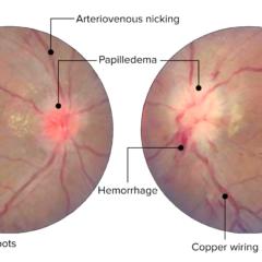 Acute hypertensive retinopathy