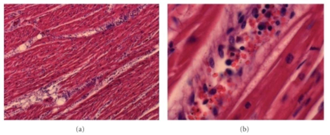 Acute myocarditis