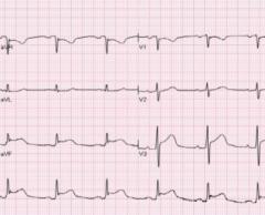 Acute pericarditis ST elevation