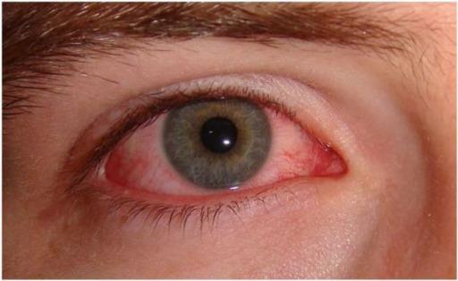 Acute viral conjunctivitis