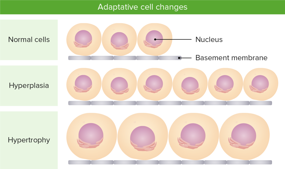 Adaptive cell changes