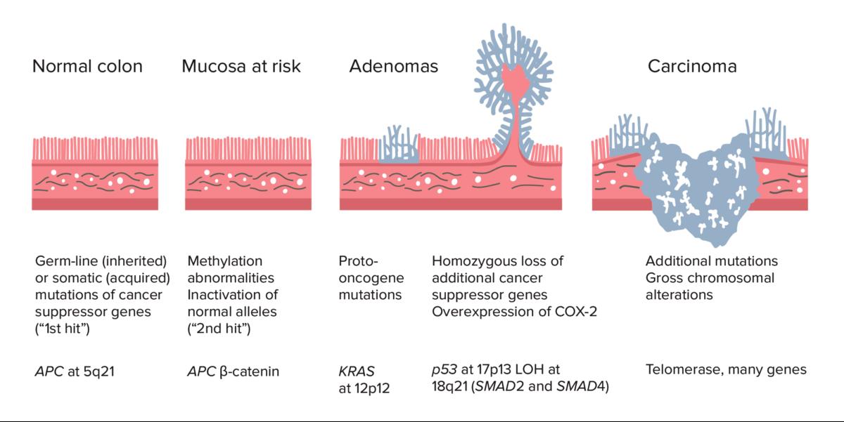 Adenoma-carcinoma sequence