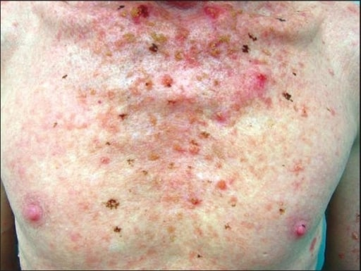 Albino showing actinic keratoses lesions over the chest