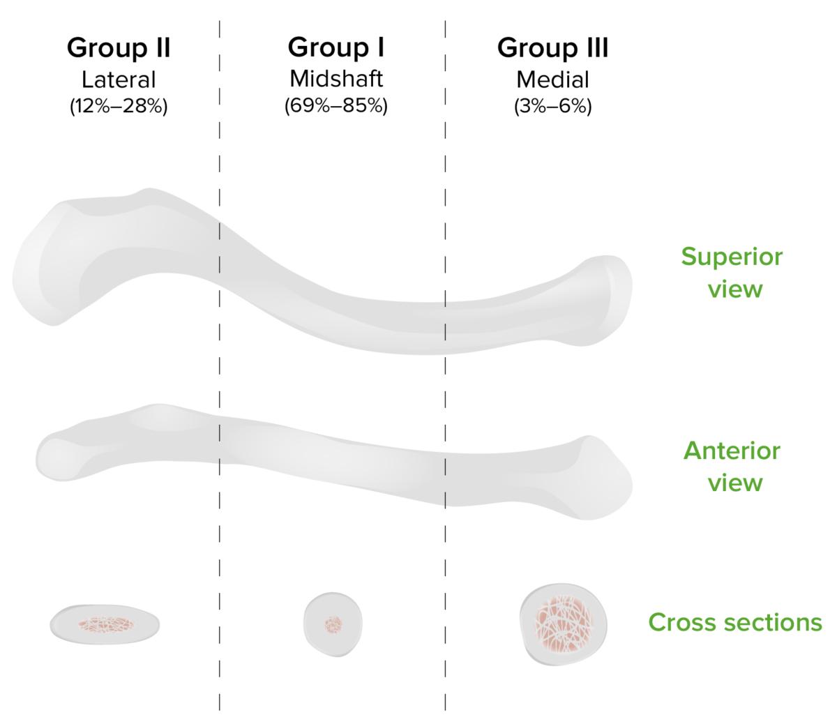 Allman classification