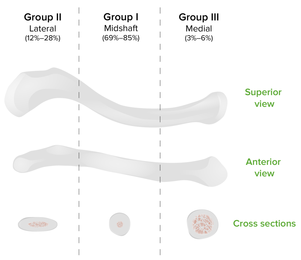 Allman classification of fractures