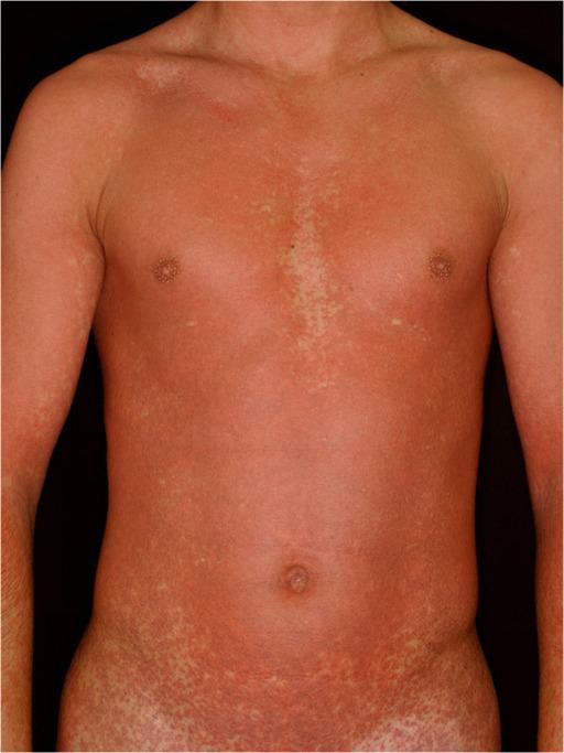 Amoxicillin rash