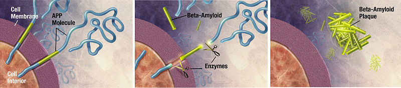 Amyloid plaque formation
