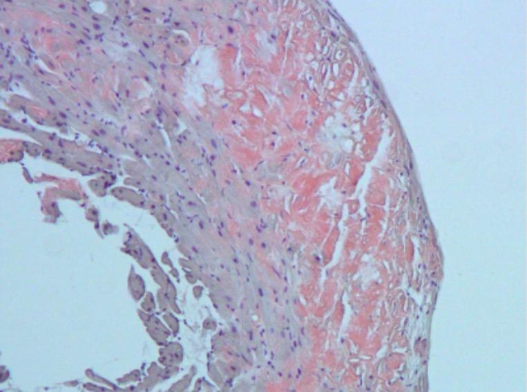 Amyloidosis cardiomyopathy