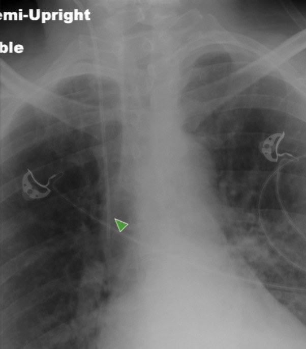 An X-ray of a patient with a central line