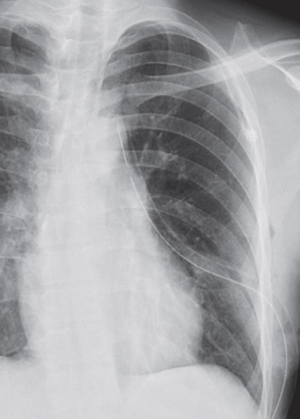 An X-ray of a patient with a chest tube