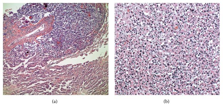 Anaplastic thyroid carcinoma