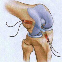 Anatomic ACL reconstruction with bone-patellar tendon-bone (BTB) graft