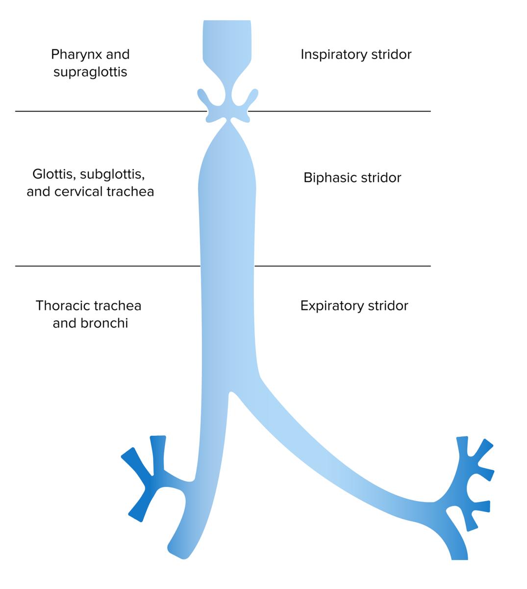 Anatomical location of obstruction based on inspiratory vs expiratory stridor