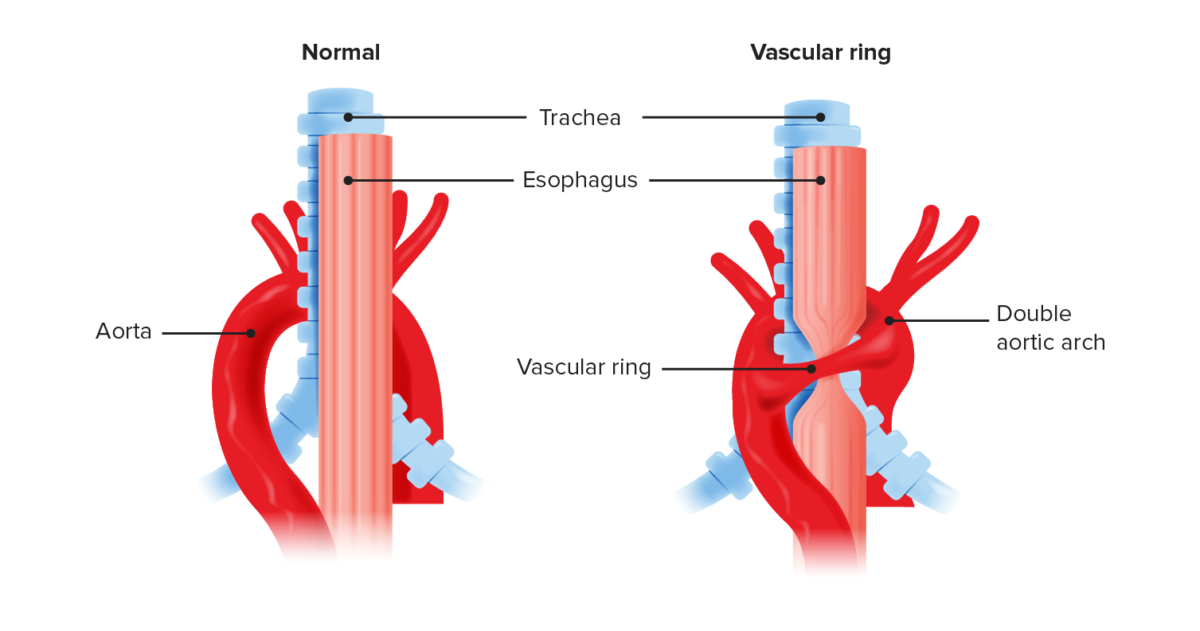 Anatomical recreation of a vascular ring compared to normal anatomy