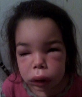 Angioedema of the face