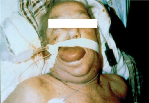Angioedema with ACE inhibitor