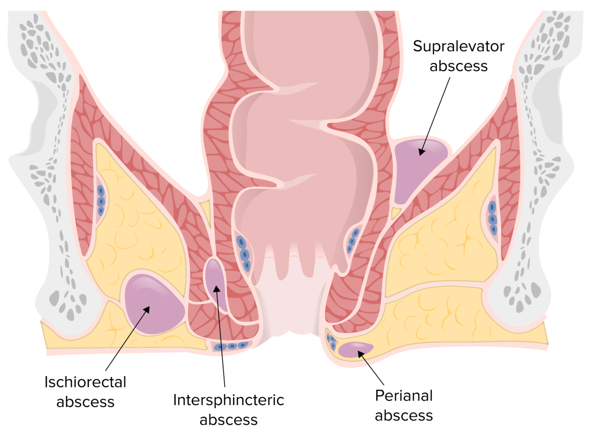 Locations of perianal, ischiorectal, intersphincteric, and supralevator abscesses