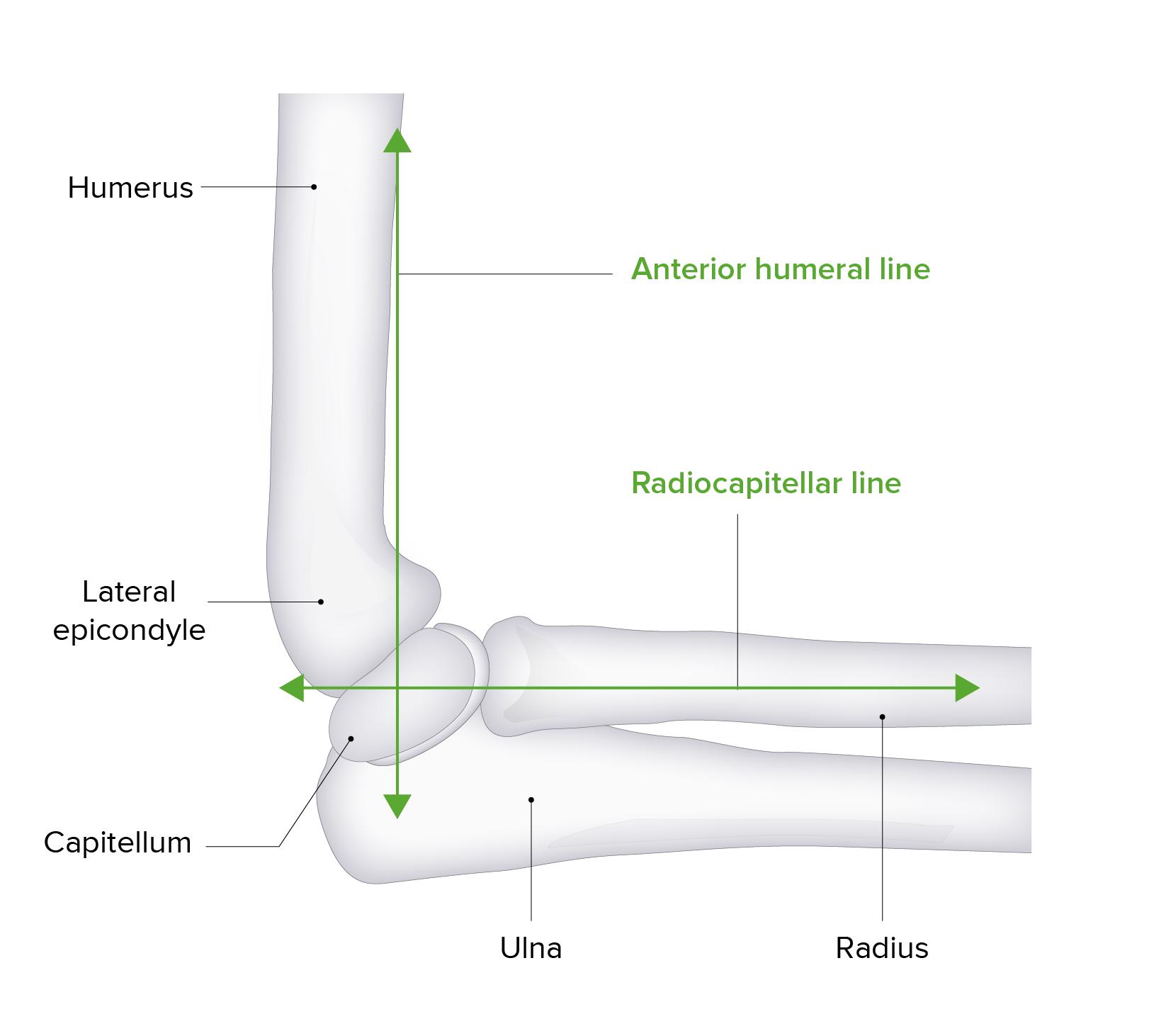 Anterior humeral line diagram