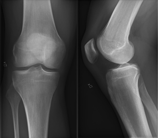 Anterior-posterior (left) and lateral (right) projection of a normal right knee