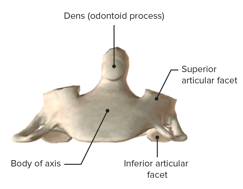 Anterior view of axis