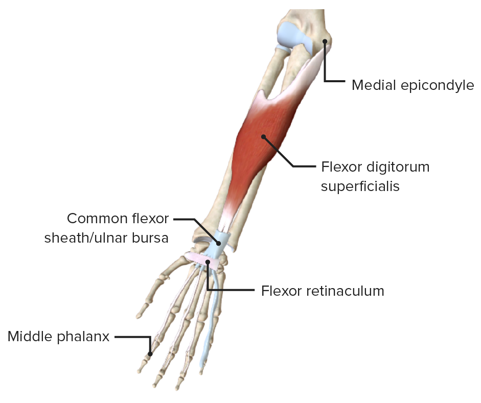 Anterior view of the right forearm, featuring the only muscle of the intermediate layer of the anterior compartment