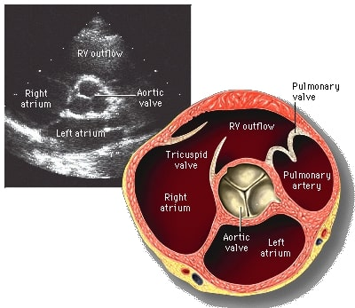 Aortic Valve photo and illustration
