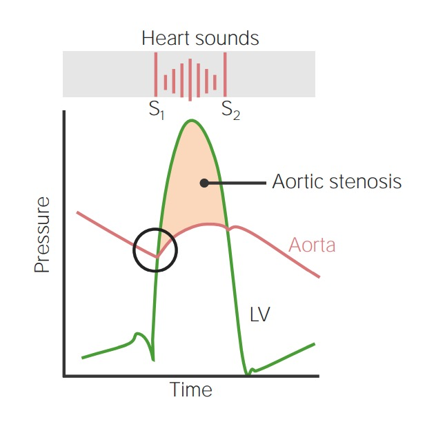 Aortic stenosis heart sounds