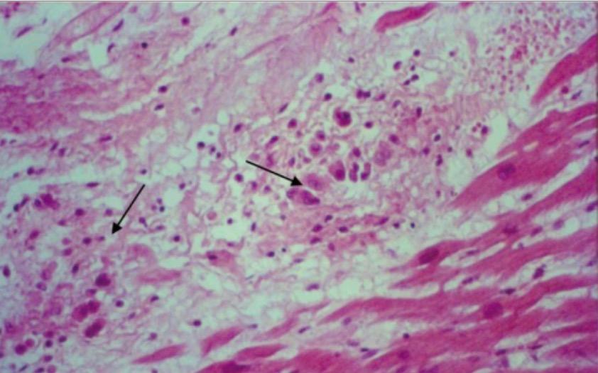 Aschoff nodules