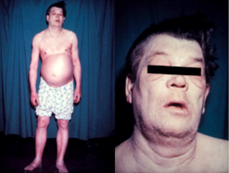 Ascites due to hepatic cirrhosis