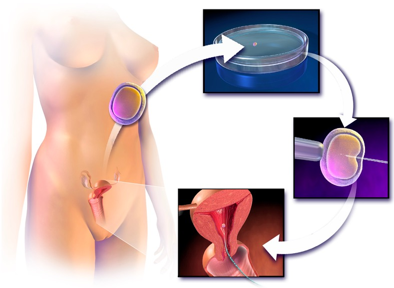 Assisted reproductive technology process