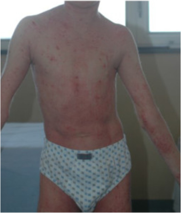 Atopic dermatitis covering the whole body