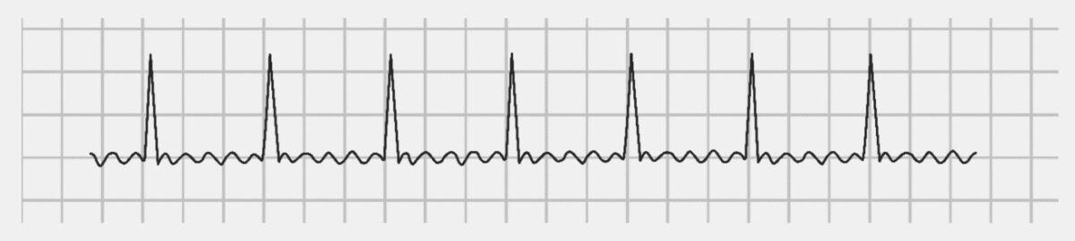 Atrial Flutter ECG